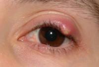Как выглядит созревающий ячмень на глазу