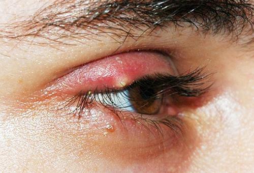 Типы заболевания и причины его возникновения