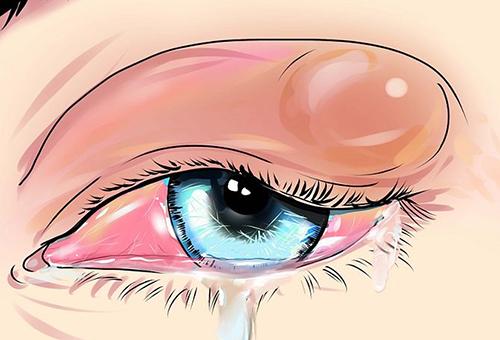 Симптомы болезни и первая помощь