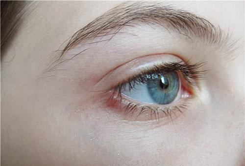 Ячмень на глазу не заразен