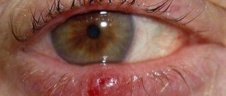 воспаление сального канальца